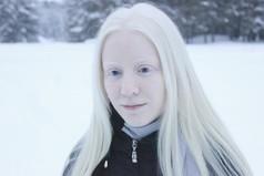 Простой блондинкой конечно тяжело быть…что ж  тогда творится в жизни у альбиносок?